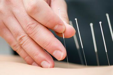 acupuncture-detox